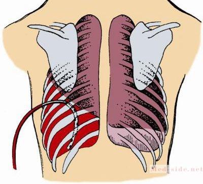 Гемоторакс – неотложная помощь и лечение кровотечения