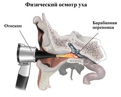 Повреждение барабанной перепонки – что делать, чтобы не потерять слух