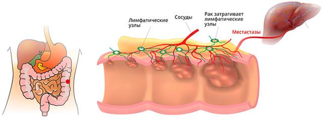 Лечение рака прямой кишки – методы лечения, прогнозы и профилактика заболевания