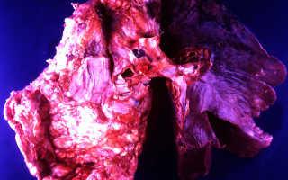 Карцинома легких – причины развития и способы лечения разновидности рака