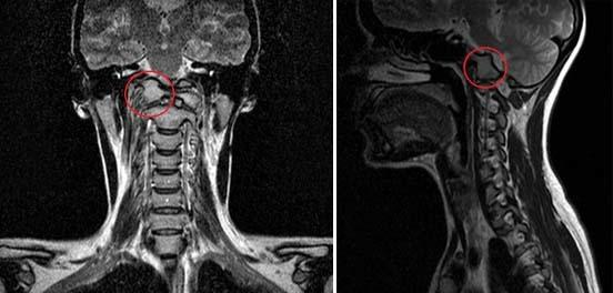Платибазия краниовертебрального перехода – причины и симптомы платибазии, прогноз