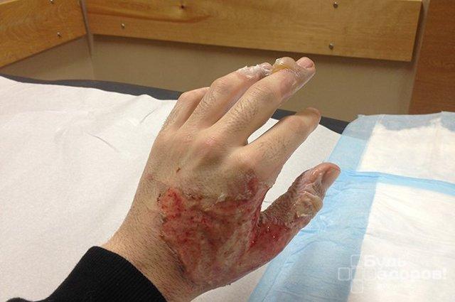 Ранняя некрэктомия при ожогах, как профилактика ожоговой болезни - виды, преимущества, показания