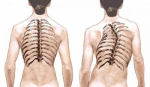 Кифосколиоз грудного отдела позвоночника, причины болезни, методы лечения