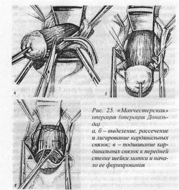 Ампутация шейки матки – манчестерская операция в гинекологии