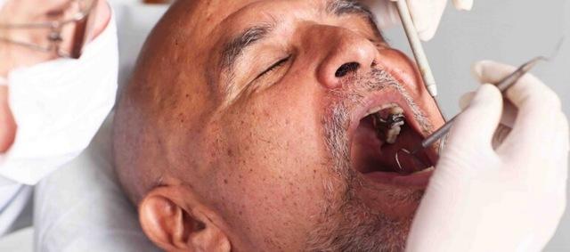 Признаки и симптомы рака во рту, причины развития – кто в группе риска развития онкологии в полости рта?
