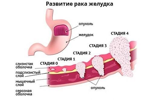 Виды, стадии рака желудка – основные причины онкологии желудка