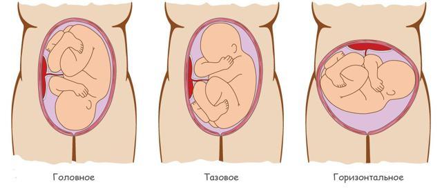 Виды предлежания плода – причины неправильного положения ребенка в матке