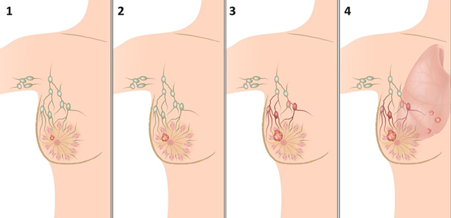 Рак молочной железы – симптомы, причины возникновения, диагностика и стадии развития