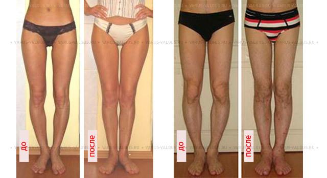 Исправление кривизны ног – современные методы оперативного лечения