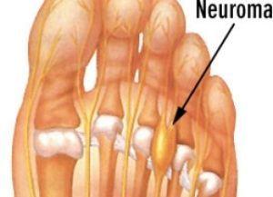 Почему болит стопа снизу – причины невромы Мортона и все перспективы лечения