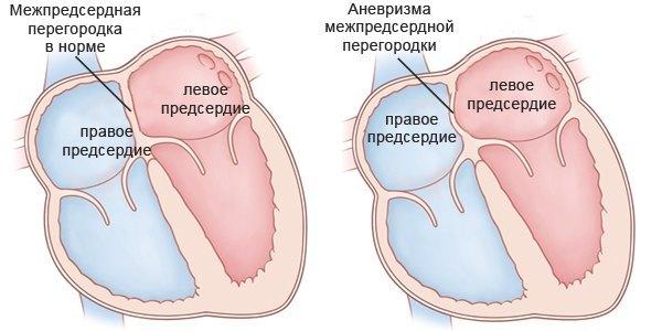 Аневризма сердца – причины, симптомы, диагностика и прогноз
