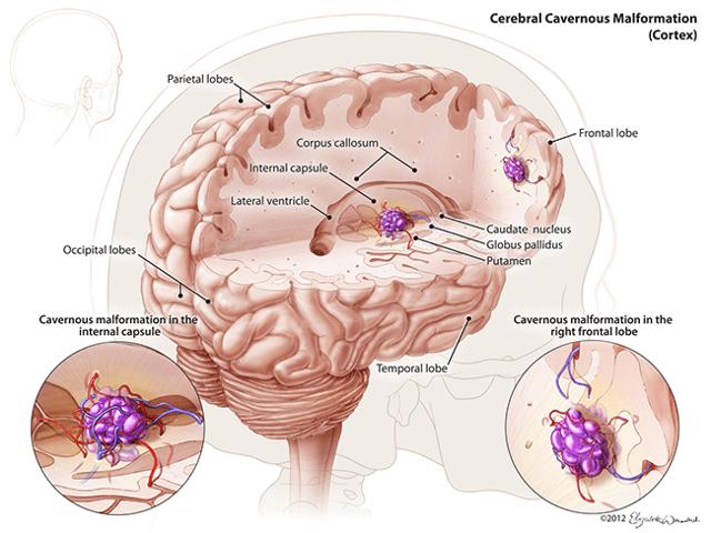 Причины ангиомы головного мозга – как заметить первые признаки