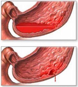 Первая помощь при внутреннем кровотечении у человека – как лечат внутреннее кровотечение?