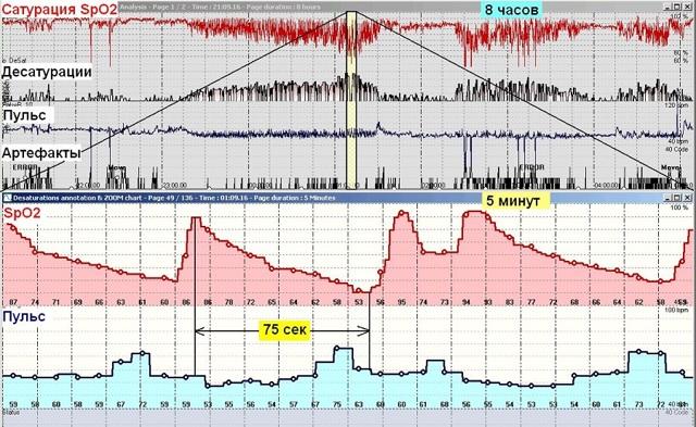 Пульсоксиметрия – описание, показания, как делают пульсоксиметрию?