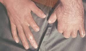 Травматическая ампутация: первая помощь и лечение